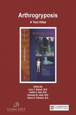 Arthrog ryposis A Text Atlas