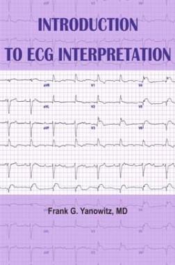 Introduction to ECG Interpretation
