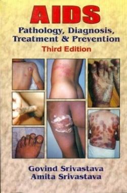 AIDS: Pathology Diagnosis Treatment & Prevention eBook By Govind Srivastava And Amita Srivastava