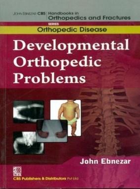Developmental Orthopedic Problems By John Ebnezar